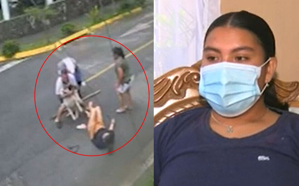 Buscan al dueño del perro que mordió a una joven en Curridabat