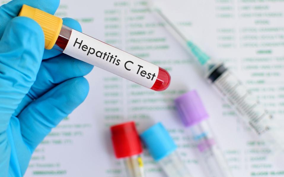 CCSS: Curados el 97% de pacientes con hepatitis C