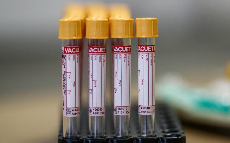 Registra España 3 mil 607 nuevos casos de coronavirus